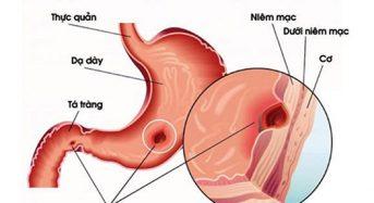 Viêm loét dạ dày tá tràng: đừng để quá muộn
