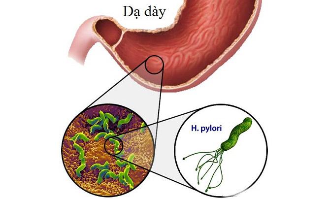 Viêm niêm mạc dạ dày là bệnh gì?