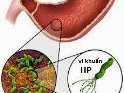 Làm gì khi bị viêm dạ dày do vi khuẩn HP gây ra?