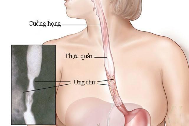 Trào ngược dạ dày, làm sao để phân biệt bệnh với những bệnh lý dạ dày khác